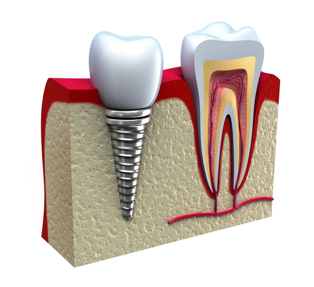 dental implants cross-section